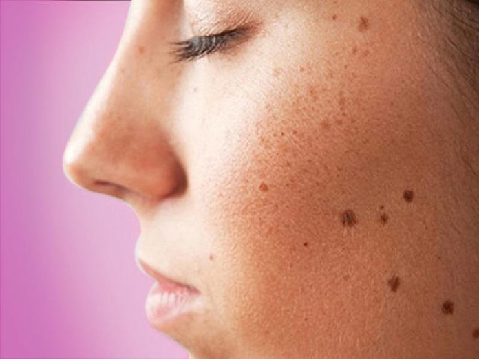 Home remedies for facial spots and bushes