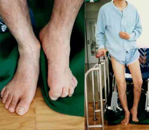 Paralysis attack treatment for body in bengali