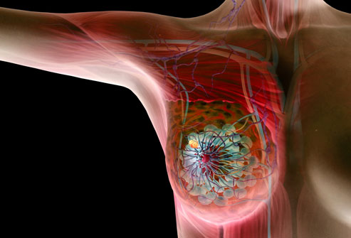 Breast Cancer Symptoms and remedies in bengali