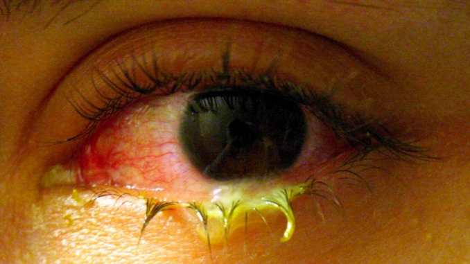Conjunctivitis Home based Treatment in Bengali