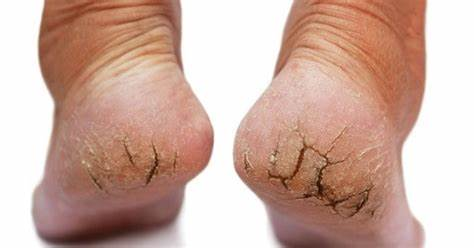 Dry Cracked Feet And Heels Causes in bengali