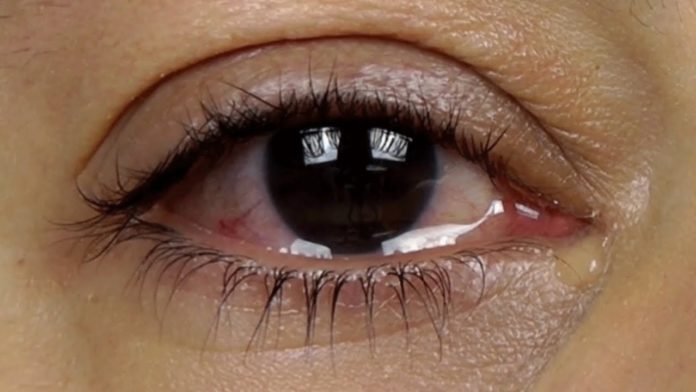 Eye water problem symptoms and Remedies in bengali