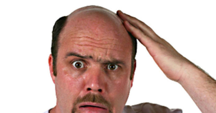 Home remedies for head baldness in bengali