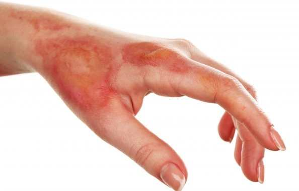 Pain Relieve After Skin Burn of body In Bengali
