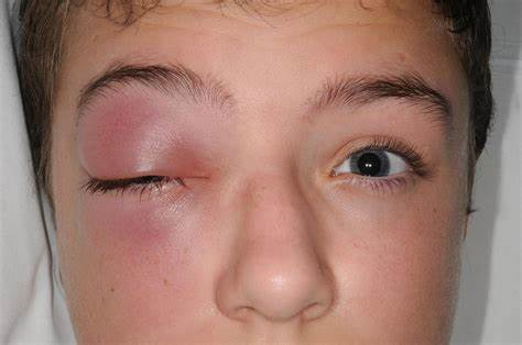 home remedies for swelling of the eye in bengali