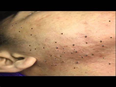 Homemade Tips for remove blackhead from face in bengali