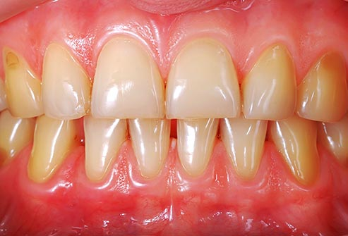 ayurveda treatment for teeth problems in bengali