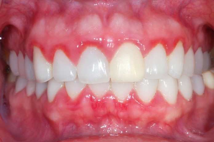home remedies for gum disease in bengali
