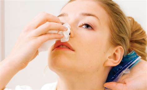 home remedies for nose bleeding in bengali