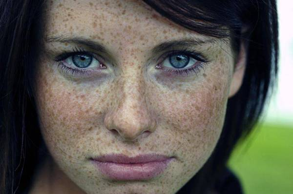home remedy for freckles on face in bengali