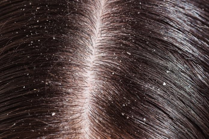 best home remedies for dandruff in bengali